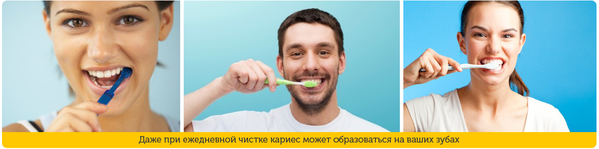 Как в домашних условиях очистить зубы от налета 762