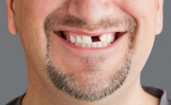 Потеря зубов: находитесь ли вы в группе риска?